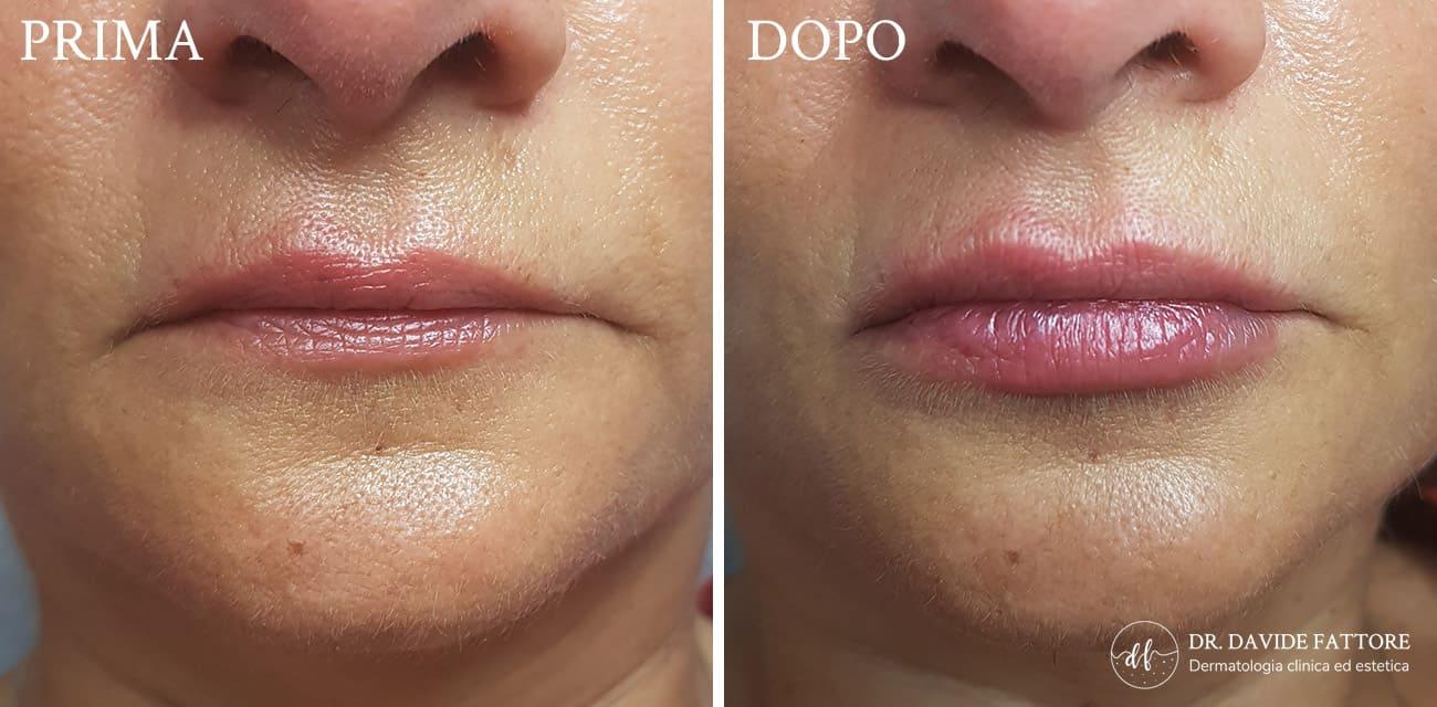 Filler prima e dopo - Dott. Davide Fattore Dermatologo