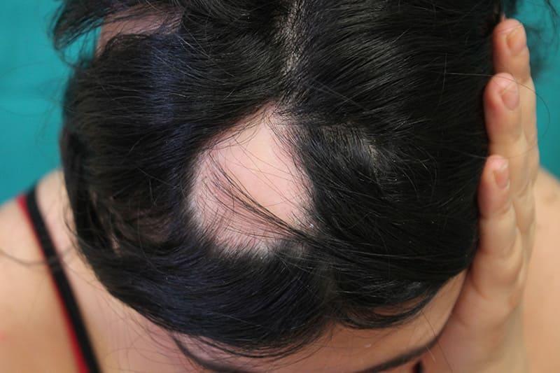 Patologie_dei_capelli_Alopecia_Areata