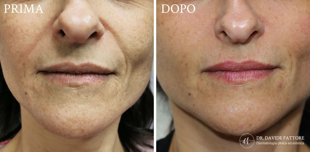 Bioristrutturazione prima e dopo - Dott. Davide Fattore Dermatologo